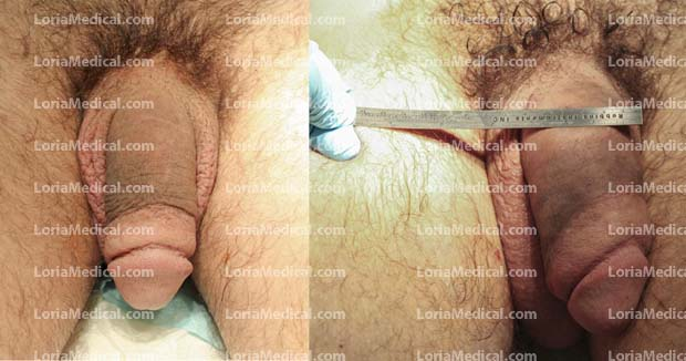 Penile Enlargement Portrait Gallery: CANADA Loria Medical Male Enhancement Image
