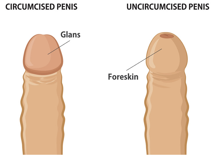 Circumcision Diagram