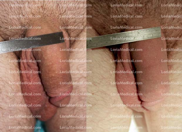 Penile Enlargement Portrait Gallery: ACORN Loria Medical Male Enhancement Image