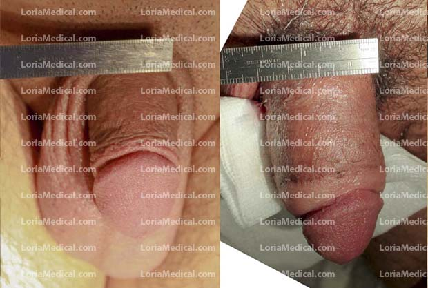 Penile Enlargement Portrait Gallery: GO Loria Medical Male Enhancement Image