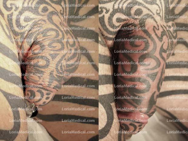 Penile Enlargement Portrait Gallery: HOUSE Loria Medical Male Enhancement Image