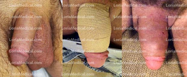 Penile Enlargement Portrait Gallery: MERKEN Loria Medical Male Enhancement Image