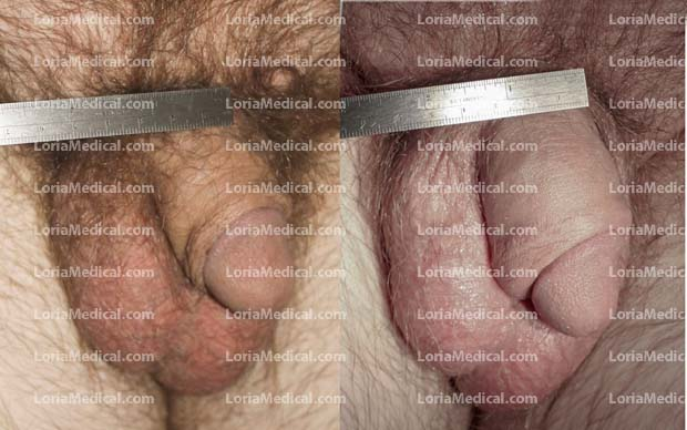 Penile Enlargement Portrait Gallery: TOM Loria Medical Male Enhancement Image