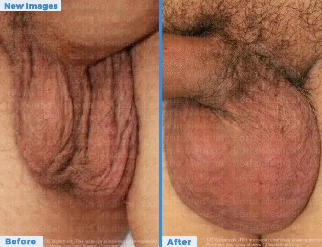 Scrotal Enhancement Loria Medical Male Enhancement Image