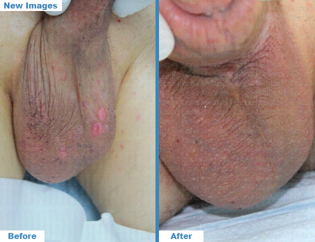 Scrotal Enhancement 4 Loria Medical Male Enhancement Image