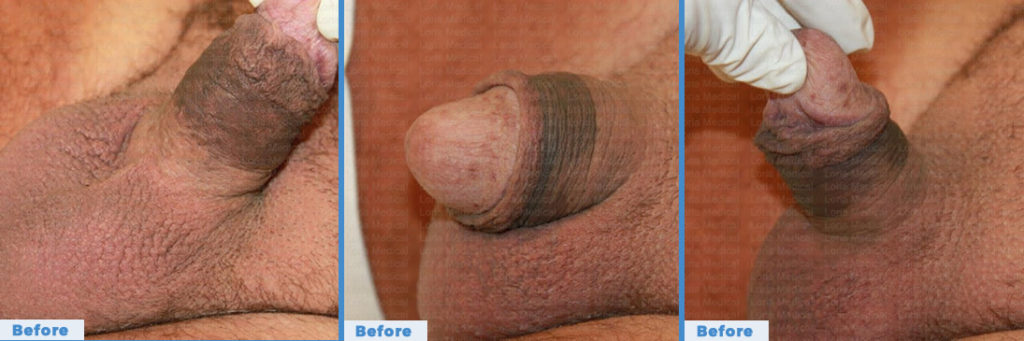 Scrotal Enhancement 5 Loria Medical Male Enhancement Image