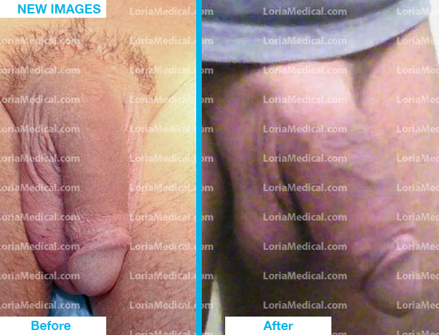 Penile Enlargement Portrait Gallery: LENNY Loria Medical Male Enhancement Image