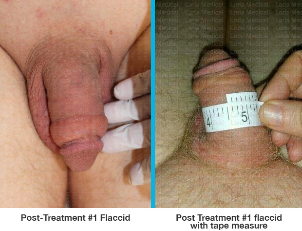Post Treatment #1 flaccid