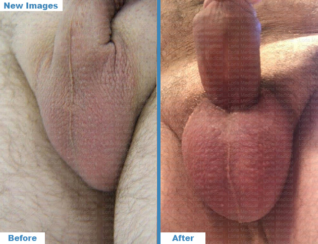 Scrotal Enhacement 3