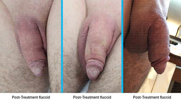 peyronies-desease-treatment-4